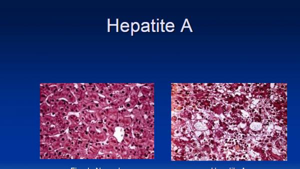 hepatite-A.png
