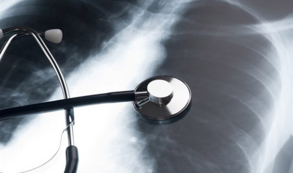 -un-dispositivo-hace-trasplantables-pulmones-que-hasta-ahora-se-desechaba-1781_620x368.jpg