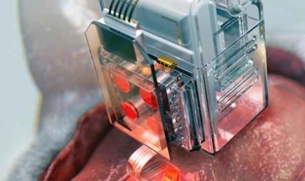 crean-un-implante-para-analizar-las-neuronas-que-se-maneja-con-el-movil-7646_620x368.jpg